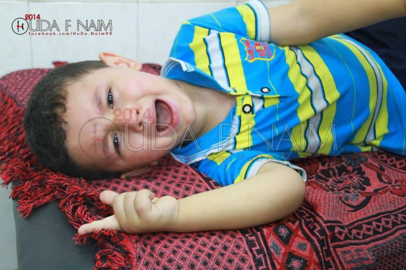Photo of كيف يتعامل الأهل مع الجريح بعد خروجه من المستشفى