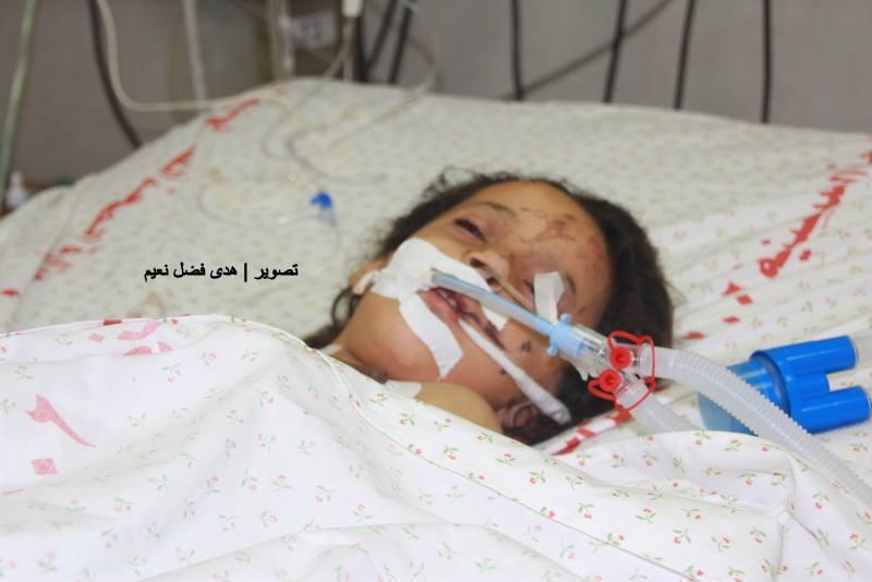 Photo of صاروخ أرقد طفلة في العناية المركزة ووالدها يصرخ خدوا من دمي وأنعشوها