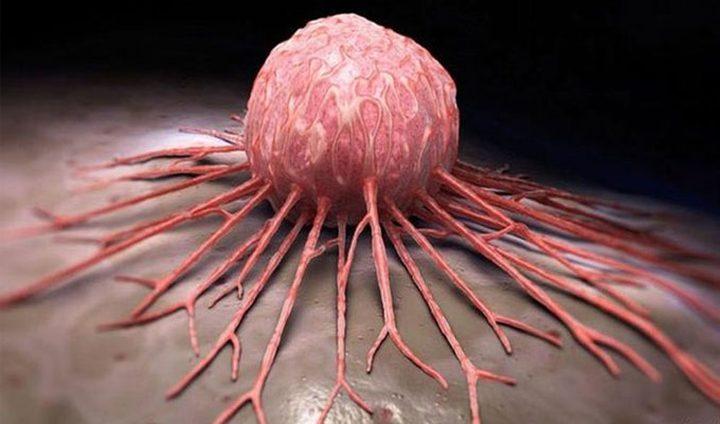 Photo of علامات سرطان الثدي